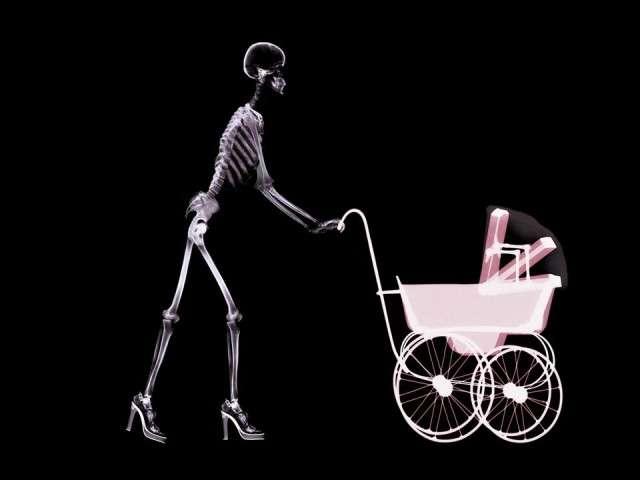 X-Ray xr19.jpg